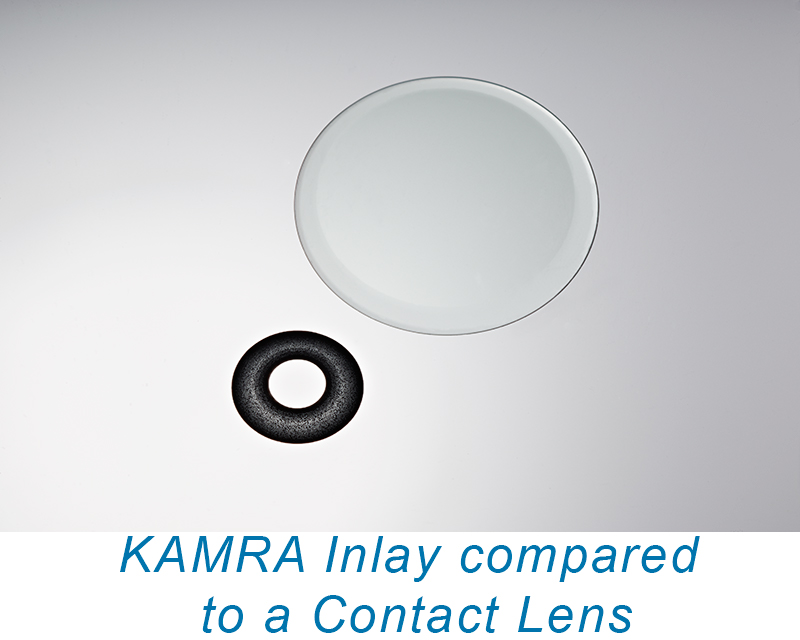 KAMRA Inlay vs. Contact Lens